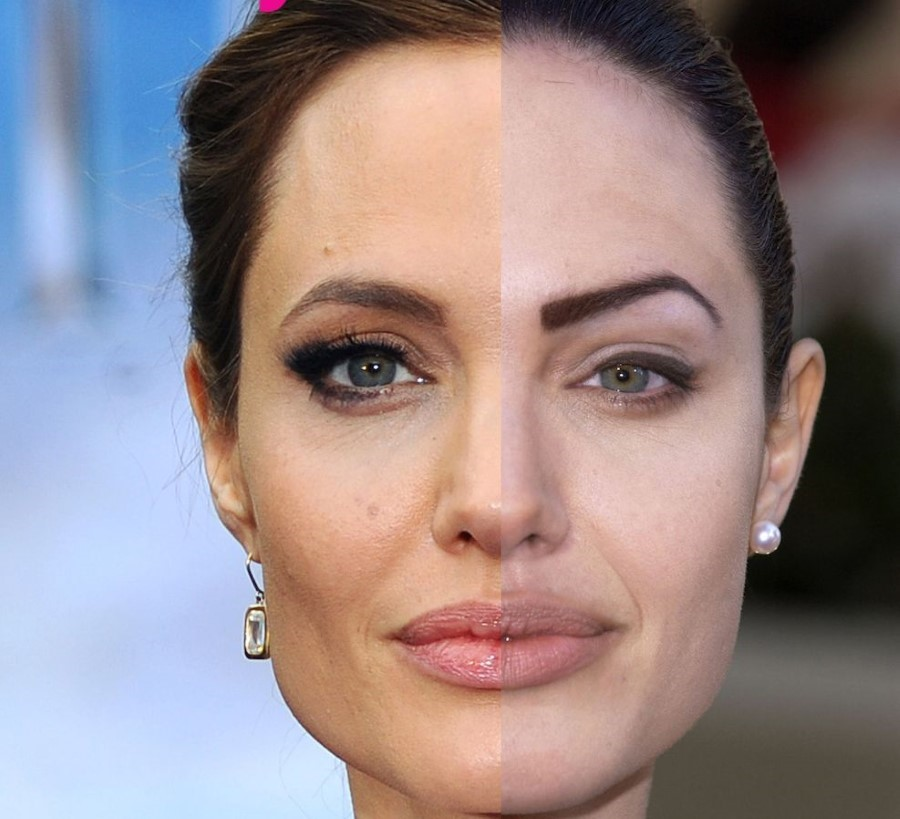 Angelina Jolie Before And After Plastic Surgery 01