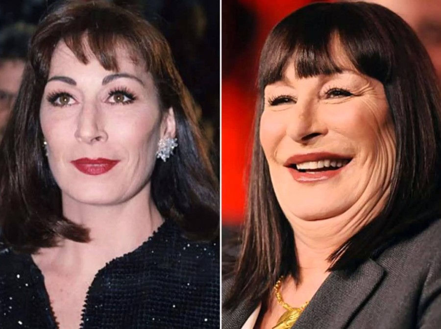 Anjelica Huston before and after plastic surgery