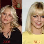 Anna Faris before and after plastic surgery 01