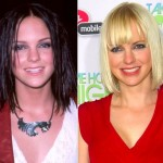 Anna Faris before and after plastic surgery 04