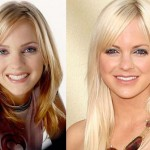Anna Faris before and after plastic surgery 05