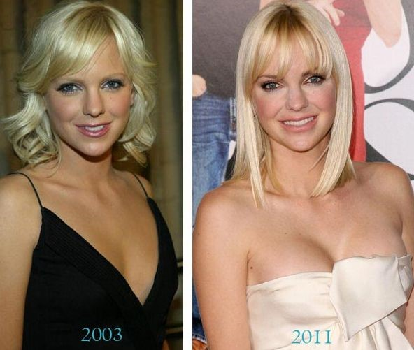 Anna Faris before and after plastic surgery
