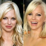 Anna Faris before and after plastic surgery 08