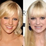 Anna Faris before and after plastic surgery 09