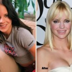 Anna Faris before and after plastic surgery 10