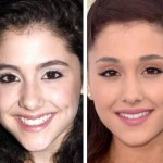 Ariana Grande before and after plastic surgery 02