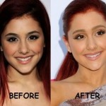 Ariana Grande before and after plastic surgery 04