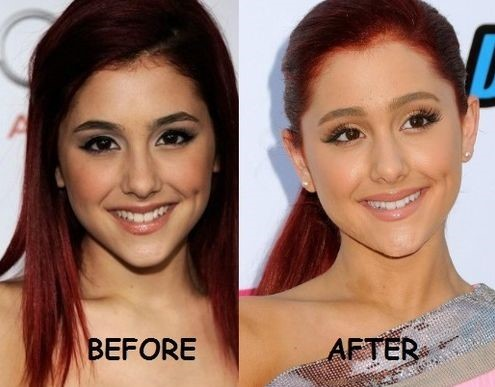Ariana Grande Before And After Nose Job Ariana Grande before a...