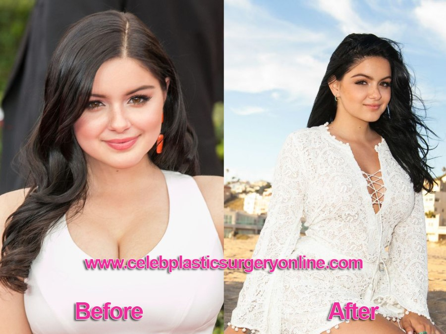 Ariel Winter before and after breasts reduction
