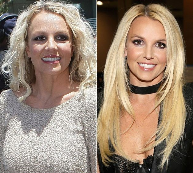 Britney Spears Before And After Plastic Surgery 09