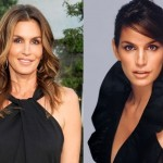 Cindy Crawford before and after plastic surgery 01