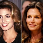 Cindy Crawford before and after plastic surgery 03