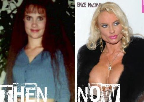 Coco Austin before and after plastic surgery 02