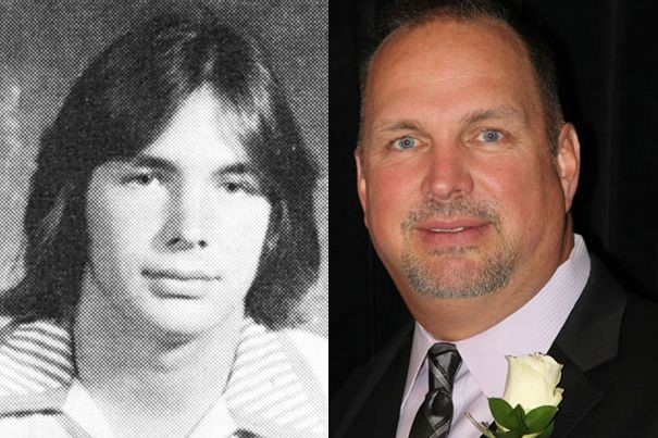 Garth Brooks before and after plastic surgery