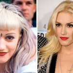 Gwen Stefani before and after plastic surgery 01