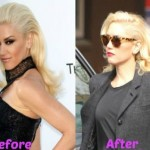 Gwen Stefani before and after plastic surgery 02