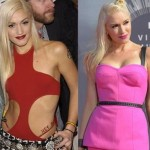 Gwen Stefani before and after plastic surgery 03