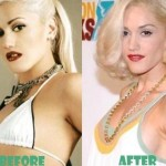 Gwen Stefani before and after plastic surgery 04
