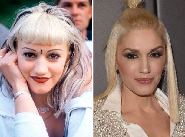Gwen Stefani before and after plastic surgery