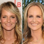 Helen Hunt before and after plastic surgery 02