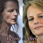Helen Hunt before and after plastic surgery 03