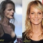 Helen Hunt before and after plastic surgery 05