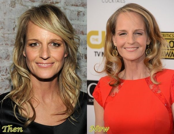Helen Hunt before and after plastic surgery