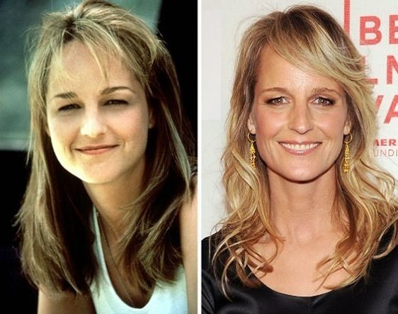 Helen Hunt Before And After Plastic Surgery 07 Celebrity