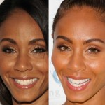 Jada Pinkett Smith before and after plastic surgery 03