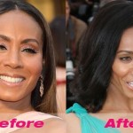 Jada Pinkett Smith before and after plastic surgery 07