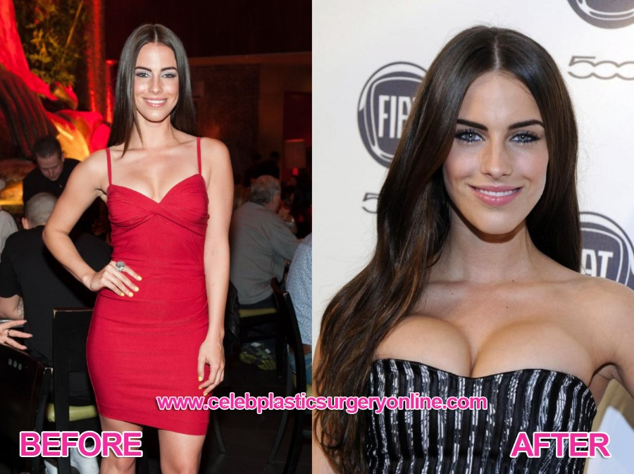Jessica Lowndes before an after plastic surgery