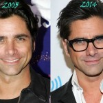 John Stamos before and after plastic surgery 08