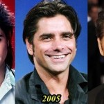John Stamos before and after plastic surgery 09
