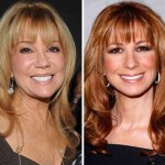 Kathie Lee Gifford before and after plastic surgery 01
