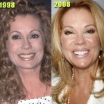 Kathie Lee Gifford before and after plastic surgery 02
