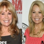 Kathie Lee Gifford before and after plastic surgery 03
