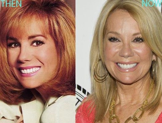 Kathie Lee Gifford before and after plastic surgery