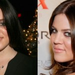 Khloe Kardashian before and after plastic surgery 01