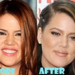 Khloe Kardashian before and after plastic surgery 06