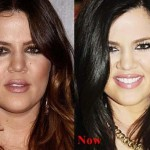 Khloe Kardashian before and after plastic surgery 07