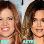 Khloe Kardashian before and after plastic surgery 08