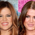 Khloe Kardashian before and after plastic surgery 09