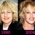 Melanie Griffith before and after plastic surgery 01