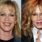 Melanie Griffith before and after plastic surgery 02
