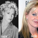 Melanie Griffith before and after plastic surgery 03