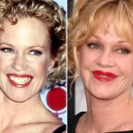 Melanie Griffith before and after plastic surgery 04