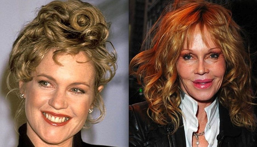 Melanie Griffith before and after plastic surgery