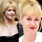 Melanie Griffith before and after plastic surgery 06