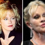 Melanie Griffith before and after plastic surgery 07