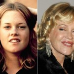 Melanie Griffith before and after plastic surgery 08